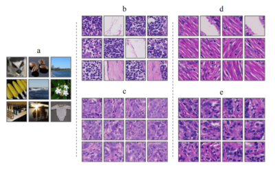 Improving Prostate Cancer Detection with Breast Histopathology Images